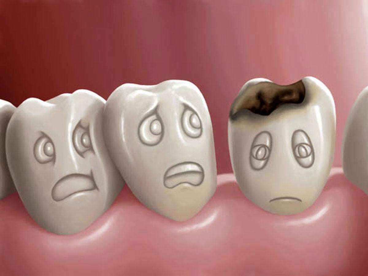 لق بودن دندان روزه را باطل می کند